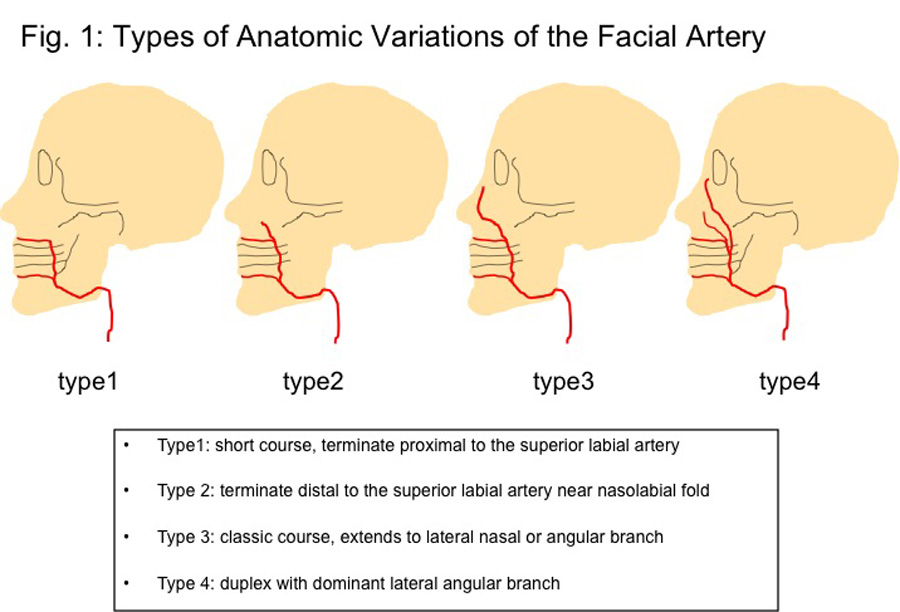 AAPS - Evaluation of Facial Artery with CT Angiography Using 64 ...