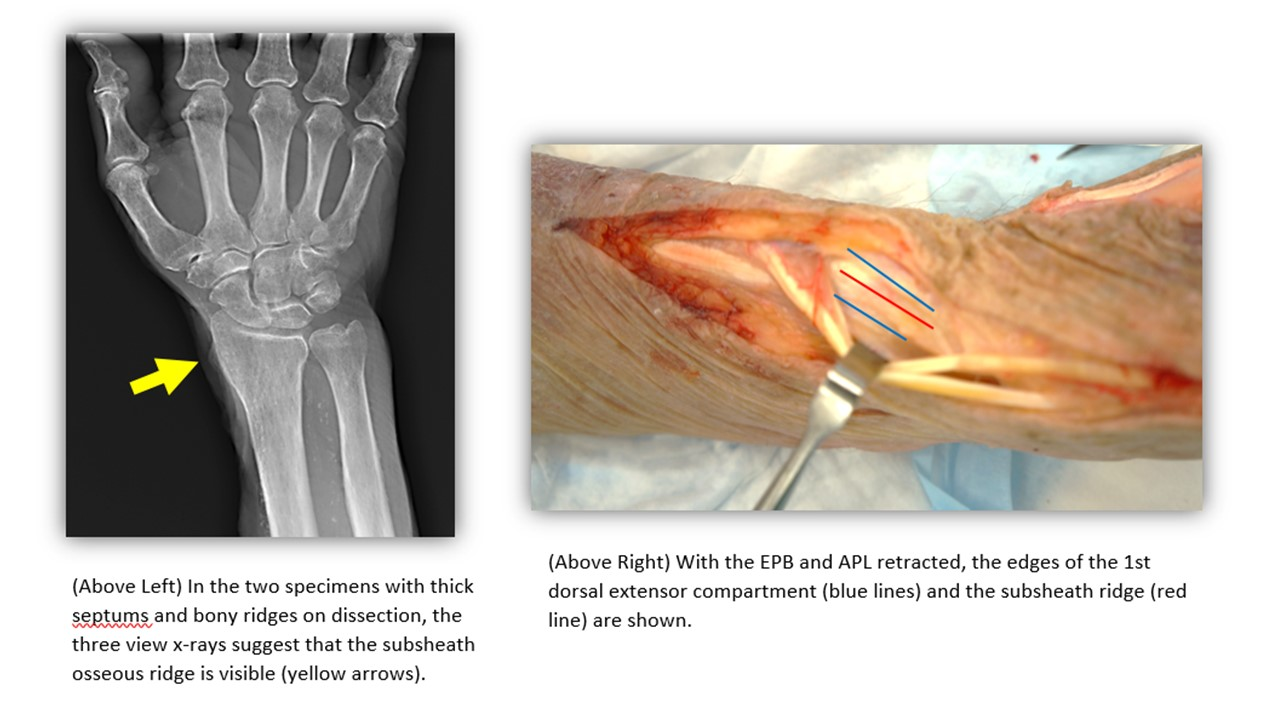AAPS - Extensor Pollicis Brevis Subcompartment Characteristics in ...